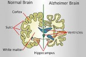 ALZHEIMER'S AFECTS YOUR SENSE OF SMELL