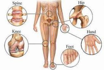 THE TOP 7 WAYS TO ALLEVIATE ARTHRITIS!