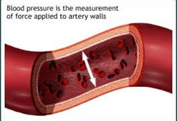 THE TOP 3 WAYS TO COMPLETELY, NATURALLY FIGHT and LOWER HIGH BLOOD PRESSURE WHICH YOU DON'T WANT TO HEAR…BUT SHOULD!